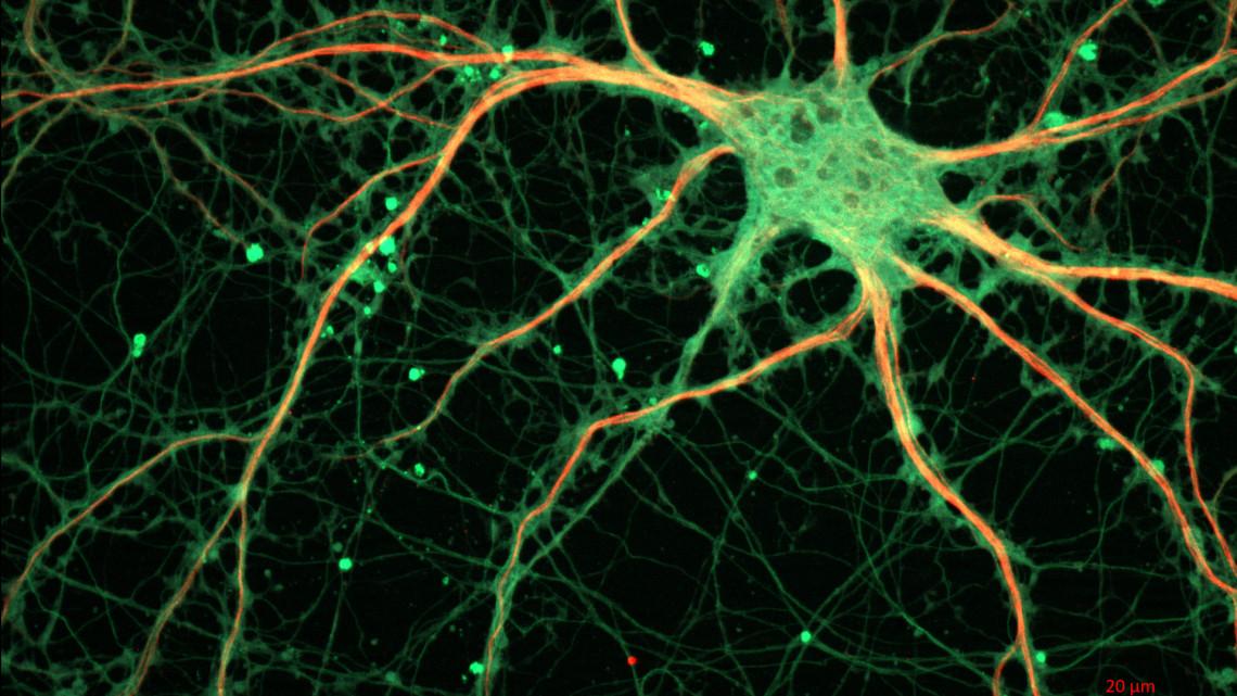 Cultured_Rat_Hippocampal_Neuron_(24327909026)