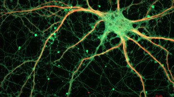 Cultured_Rat_Hippocampal_Neuron_(24327909026)