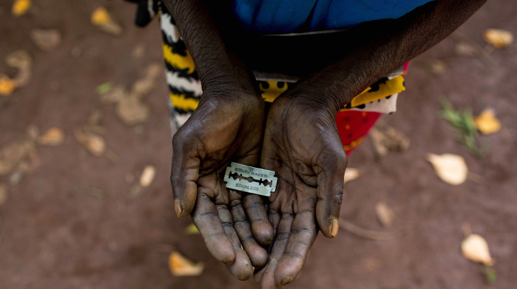 Illegal Female Genital Mutilation Cutters Show Off Their Tools